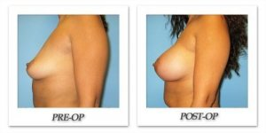 phoca_thumb_l_bruno-breast-augmentation-044