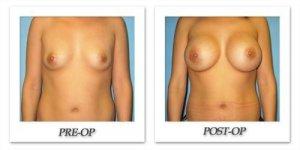 phoca_thumb_l_bruno-breast-augmentation-045