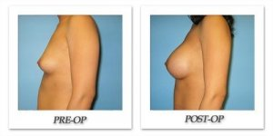 phoca_thumb_l_bruno-breast-augmentation-046