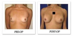 phoca_thumb_l_cohen-breast-augmentation-001