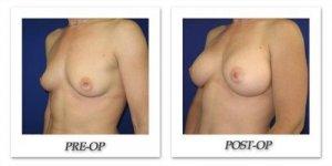 phoca_thumb_l_cohen-breast-augmentation-002