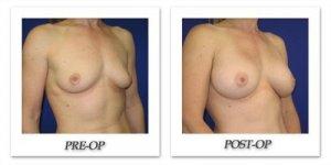 phoca_thumb_l_cohen-breast-augmentation-003
