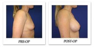 phoca_thumb_l_cohen-breast-augmentation-004