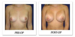 phoca_thumb_l_cohen-breast-augmentation-005