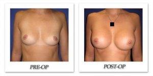 phoca_thumb_l_cohen-breast-augmentation-006