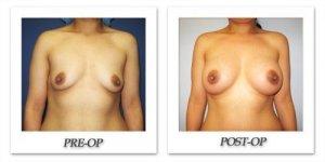 phoca_thumb_l_cohen-breast-augmentation-007