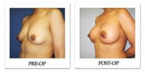 phoca_thumb_l_cohen-breast-augmentation-008