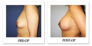 phoca_thumb_l_cohen-breast-augmentation-009