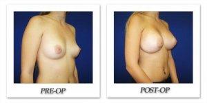 phoca_thumb_l_cohen-breast-augmentation-011