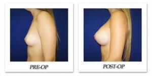 phoca_thumb_l_cohen-breast-augmentation-012