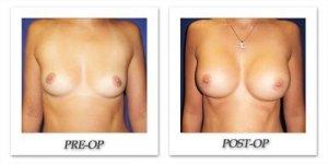 phoca_thumb_l_cohen-breast-augmentation-013