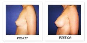 phoca_thumb_l_cohen-breast-augmentation-014