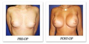 phoca_thumb_l_cohen-breast-augmentation-015