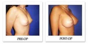 phoca_thumb_l_cohen-breast-augmentation-016