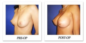 phoca_thumb_l_cohen-breast-augmentation-017