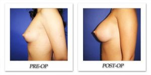 phoca_thumb_l_cohen-breast-augmentation-018