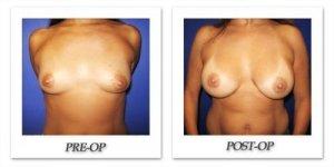 phoca_thumb_l_cohen-breast-augmentation-019