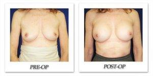 phoca_thumb_l_cohen-breast-augmentation-021