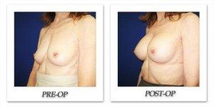 phoca_thumb_l_cohen-breast-augmentation-022