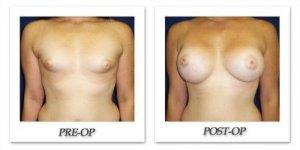 phoca_thumb_l_cohen-breast-augmentation-023