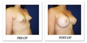 phoca_thumb_l_cohen-breast-augmentation-024