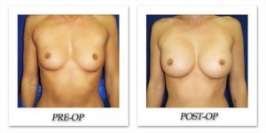 phoca_thumb_l_cohen-breast-augmentation-025