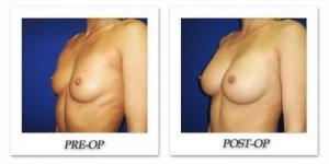 phoca_thumb_l_cohen-breast-augmentation-026