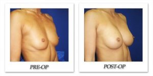 phoca_thumb_l_cohen-breast-augmentation-027