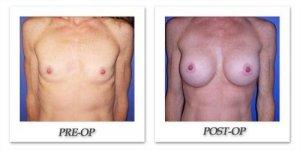 phoca_thumb_l_cohen-breast-augmentation-028