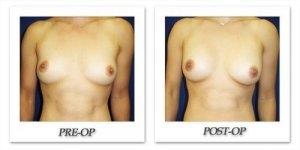 phoca_thumb_l_cohen-breast-augmentation-029