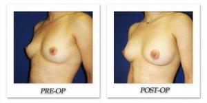 phoca_thumb_l_cohen-breast-augmentation-030