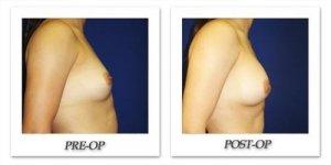 phoca_thumb_l_cohen-breast-augmentation-031