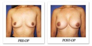phoca_thumb_l_cohen-breast-augmentation-032