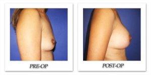 phoca_thumb_l_cohen-breast-augmentation-033