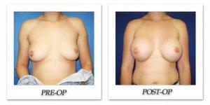 phoca_thumb_l_cohen-breast-augmentation-034
