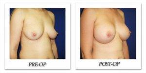 phoca_thumb_l_cohen-breast-augmentation-035