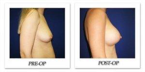 phoca_thumb_l_cohen-breast-augmentation-036