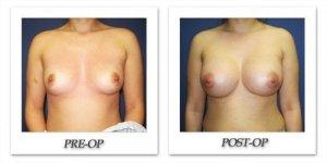 phoca_thumb_l_cohen-breast-augmentation-037