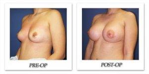 phoca_thumb_l_cohen-breast-augmentation-038