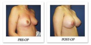 phoca_thumb_l_cohen-breast-augmentation-039