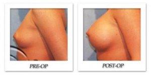 phoca_thumb_l_hodnett-breast-augmentation-001