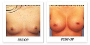 phoca_thumb_l_hodnett-breast-augmentation-002