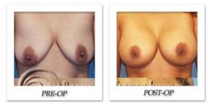 phoca_thumb_l_hodnett-breast-augmentation-003