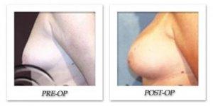 phoca_thumb_l_hodnett-breast-augmentation-005