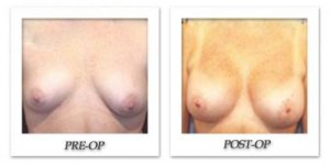 phoca_thumb_l_hodnett-breast-augmentation-006