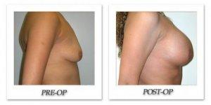 phoca_thumb_l_hodnett-breast-augmentation-007
