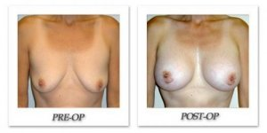 phoca_thumb_l_hodnett-breast-augmentation-008