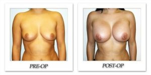 phoca_thumb_l_hodnett-breast-augmentation-009