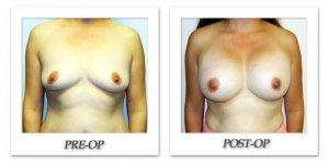 phoca_thumb_l_hodnett-breast-augmentation-010
