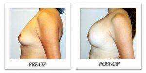 phoca_thumb_l_hodnett-breast-augmentation-011